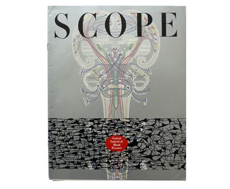 Scope_01